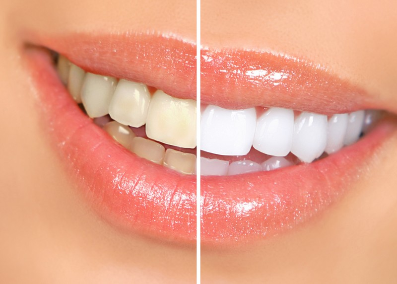 Teeth Whitening  Hickory, NC